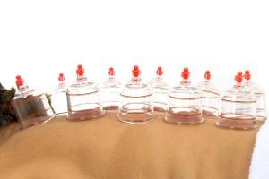 Cupping is een stevige massage die niet erg ontspannen is en zelfs pijnlijk kan zijn ©VINICIUS R TUPINAMBA
