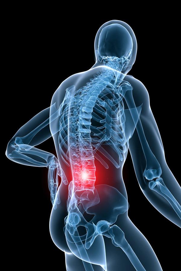 chronische rugpijn